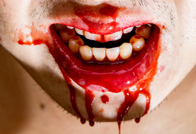 Bloody mouth